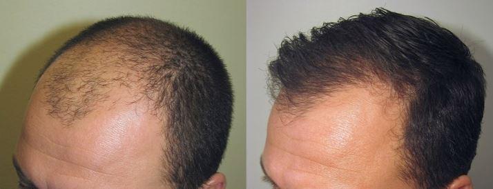 calvitie ou implantation naturelle