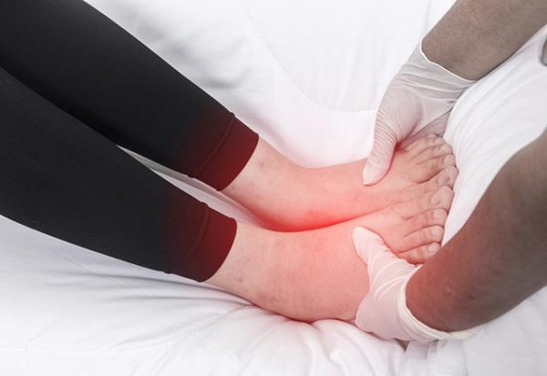 Edema > What is edema? | Symptoms | Treatment | Types | Causes | Complications
