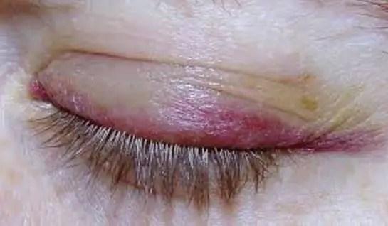 Bruised eyelid turns purple