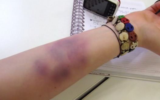What causes bruising without injury