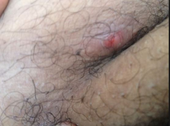 What Are The Bumps On My Butt 117