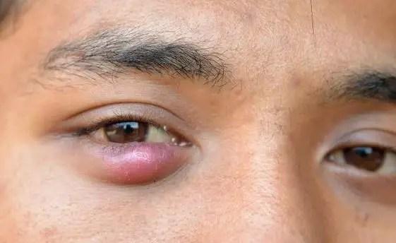 Lump under eyelid or pimple under eyelid