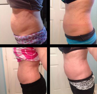 Before and after pictures of using epsom salt body wrap