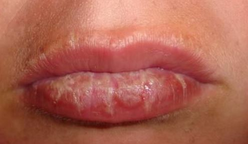 Sun blister on lip