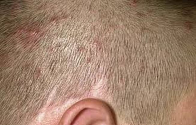 Itchy Bumps On Scalp Neck Causes Red Hurts Pictures