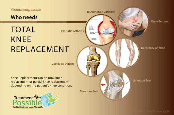 Total knee replacement surgery needs to be performed in the following conditions which are Psoriatic Arthiritis, Rheumatoid Arthritis, Knee trauma, Deformity of bone, cartilage defects and meniscus tear
