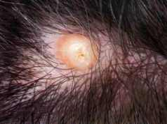 Ingrown-hair-cyst-on-scalp