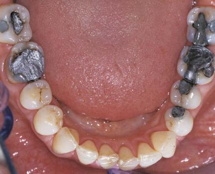 Symptoms of Mercury Toxicity