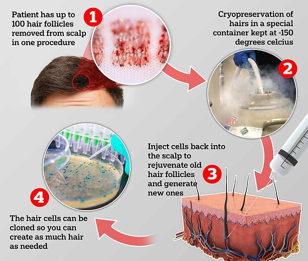 Men Can Now Freeze Their Follicles In A Hair Bank To Use Later In Life If They Go Bald
