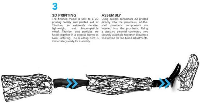 exo-prosthetic-leg-3
