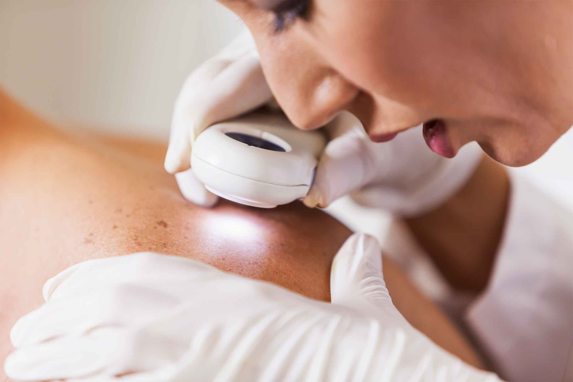 Skin Cancer Can Be Detected Just By Using Your Smartphone