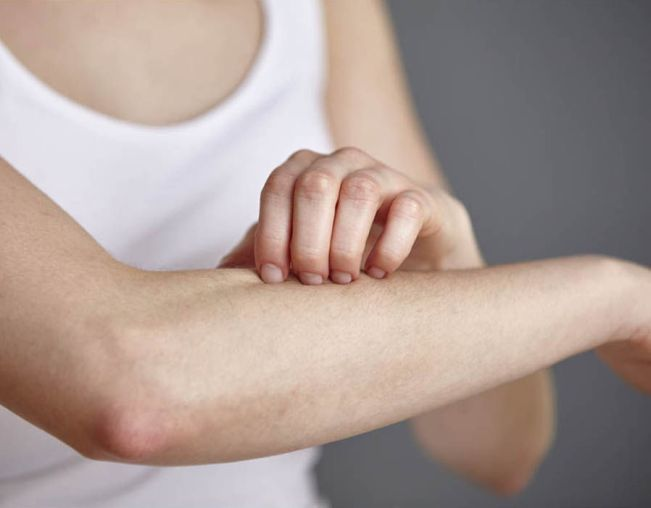 Best lotions for eczema and itchy skins