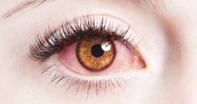 Why-Your-Contact-Lenses-Are-Giving-Red-Eyes