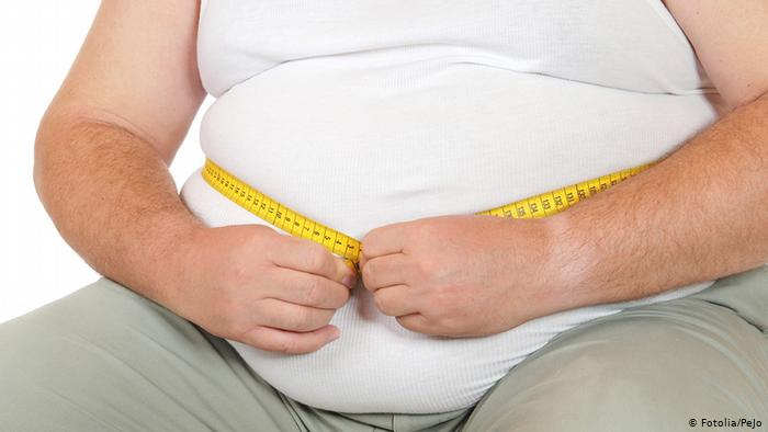 Obesity Causes, Symptoms, Treatment