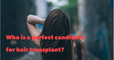 who is perfect for hair transplant