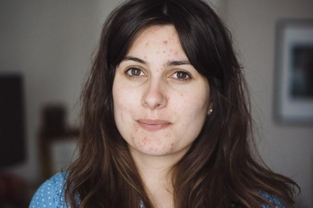 Portrait Acné