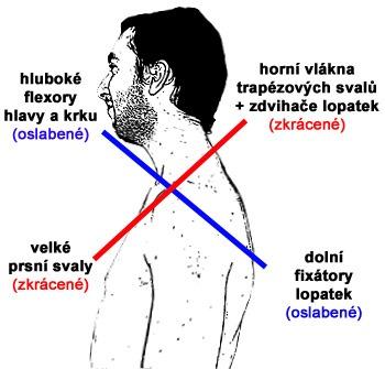 ochablé svaly vs zkrácené