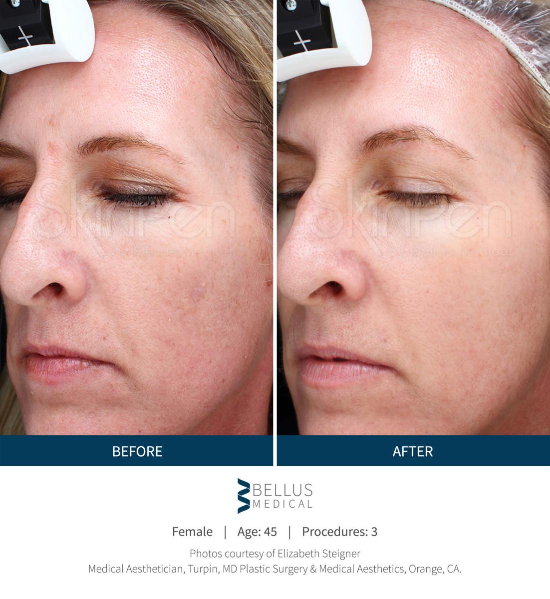 Professional Skin Care Lines Estheticians