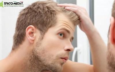 Alopecia androgenetica nei giovani