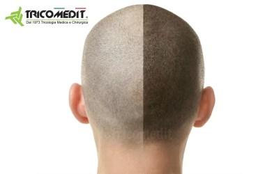Tricopigmentazione pro e contro