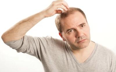 Cura per l'alopecia androgenetica maschile
