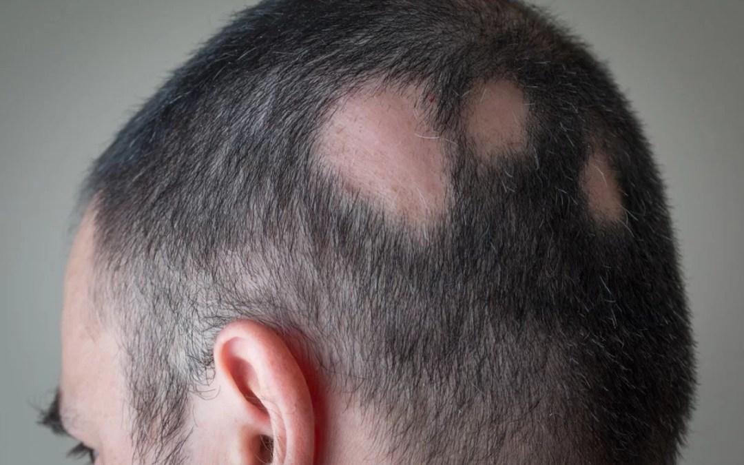 Alopecia areata: cause e cure