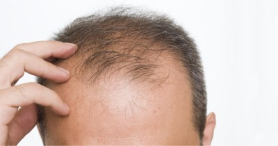 Diradamento dei capelli: le principali cause