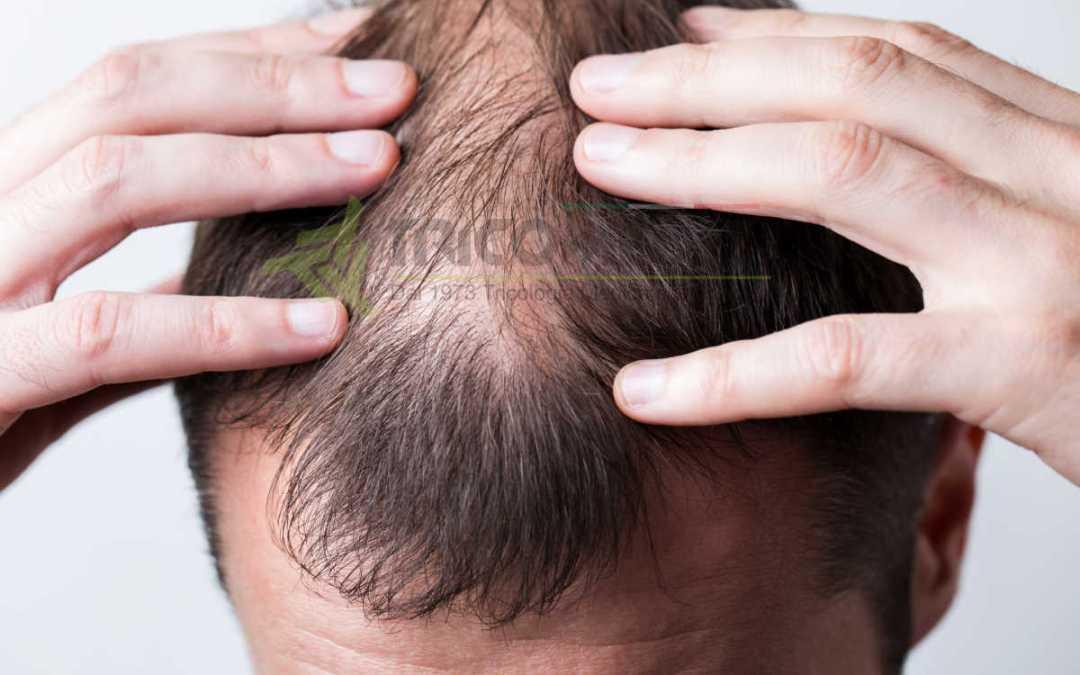 La caduta dei capelli – Triconews