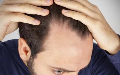 Stempiatura e diradamento capelli
