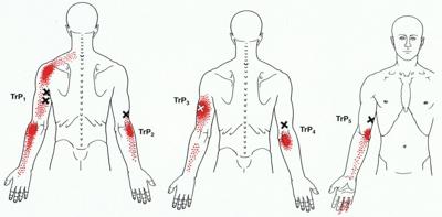 Tennisarm, Laterale Epicondylitis