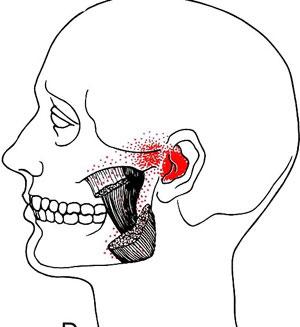 Location Of Headaches Location Of Sciatica Wiring Diagram