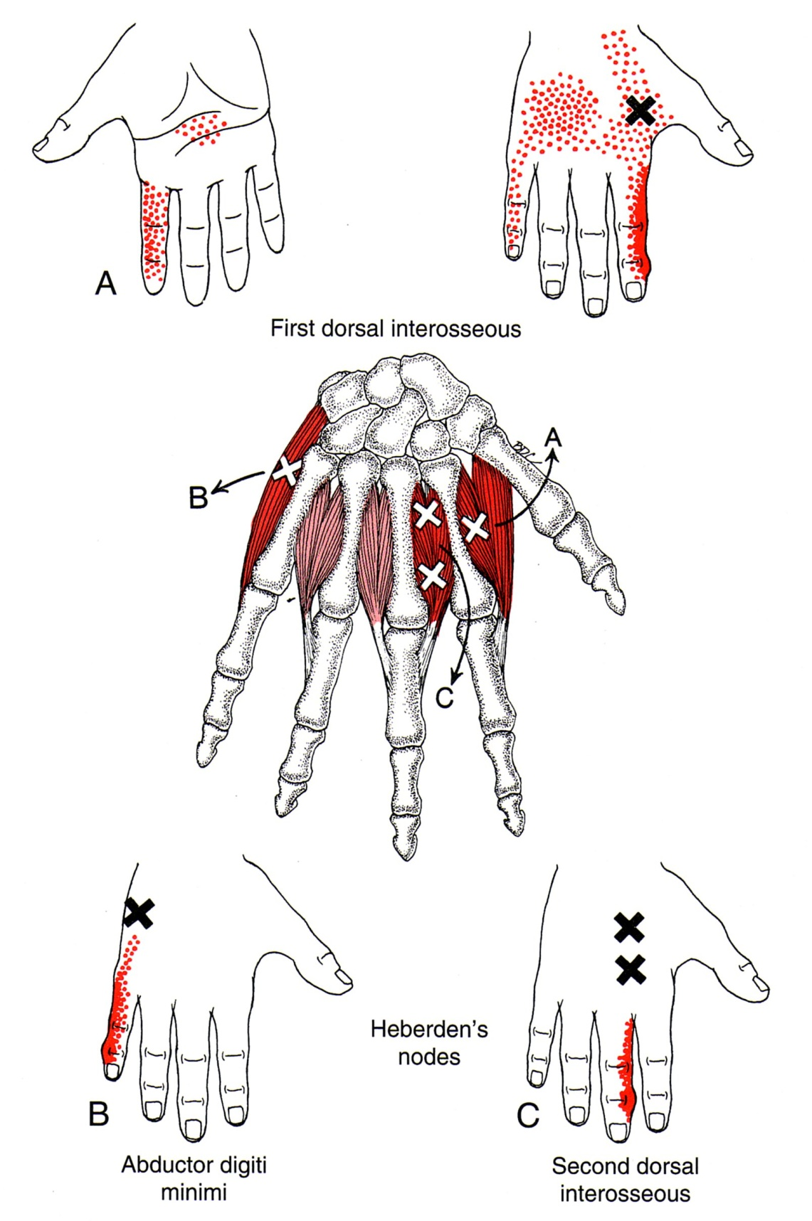 muscle diagram dorsal lincoln welder wiring first interosseus the trigger point referred pain guide