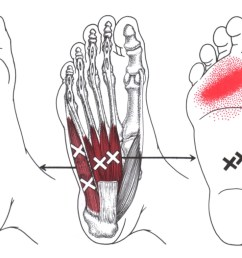 abductor digiti minimi foot trigger point diagram symptom area  [ 1269 x 785 Pixel ]