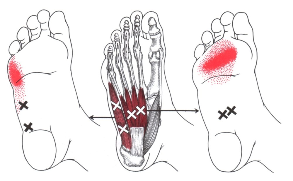 medium resolution of abductor digiti minimi foot trigger point diagram symptom area