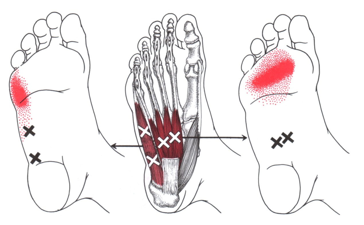 hight resolution of abductor digiti minimi foot trigger point diagram symptom area