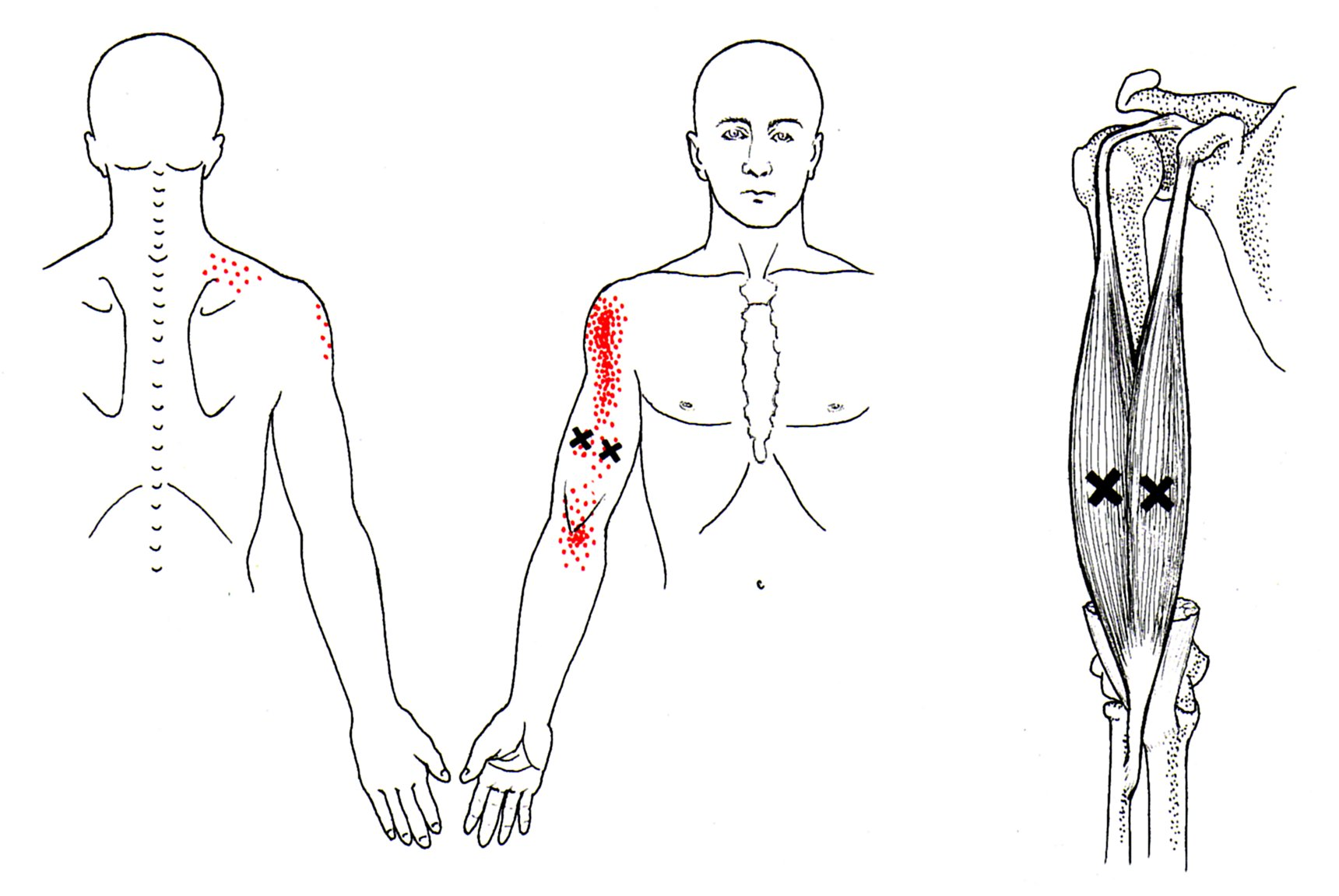 triceps brachii diagram mallory ignition wiring unilite biceps the trigger point and referred pain guide