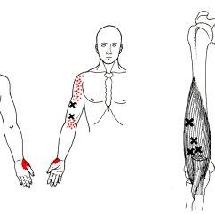 Fibromyalgia Pain Diagram International 4300 Stereo Wiring The Brachialis Muscle Yoganatomy