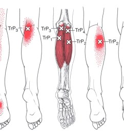 gastrocnemius the trigger point referred pain guide diagram of gastrocnemius [ 1376 x 1014 Pixel ]