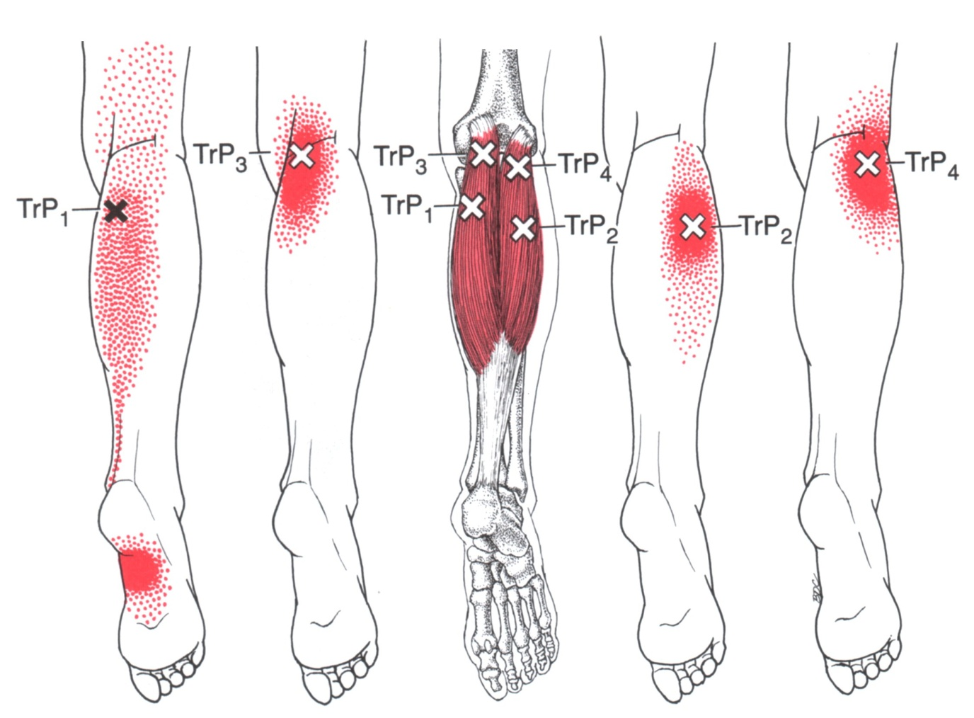 hight resolution of gastrocnemius the trigger point referred pain guide diagram of gastrocnemius