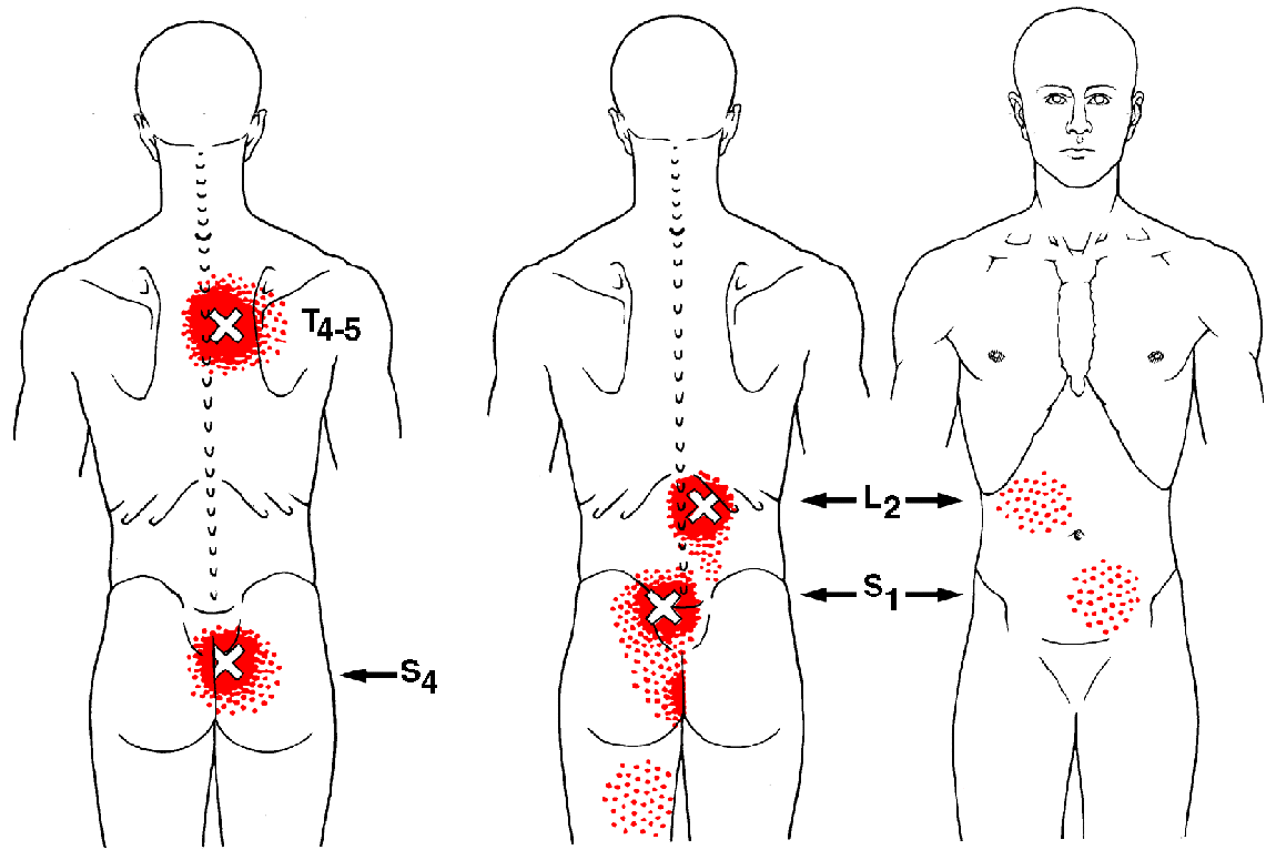 gluteus muscles diagram pain house wiring 3 way switch multifidi | the trigger point & referred guide