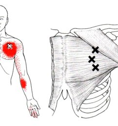pectoralis major the trigger point referred pain guide female rib anatomy diagram diagram of pec major [ 1152 x 824 Pixel ]
