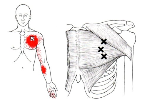 small resolution of pectoralis major the trigger point referred pain guide female rib anatomy diagram diagram of pec major