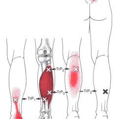 Medial Lower Leg Muscles Diagram Kenwood Kdc Soleus | The Trigger Point & Referred Pain Guide