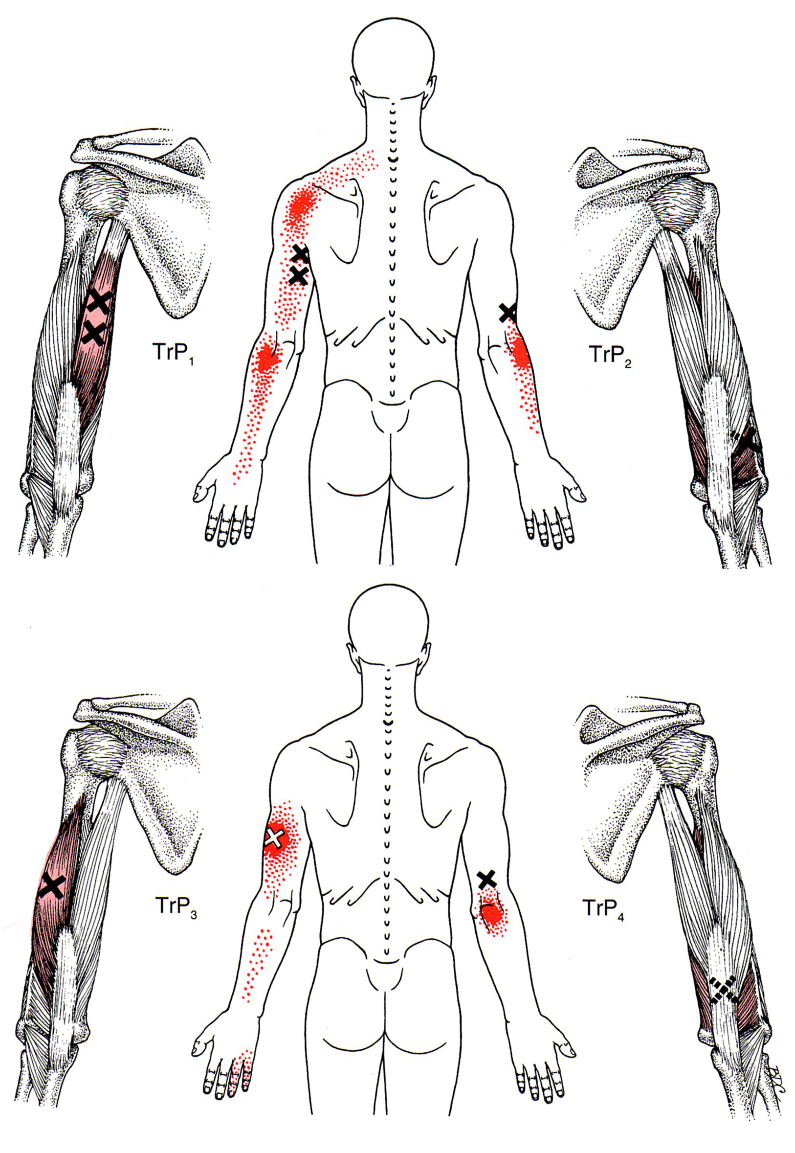 triceps brachii diagram parts of a cow the trigger point referred pain guide