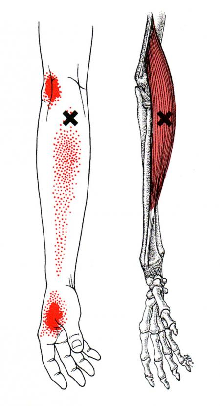 Brachioradialis   The Trigger Point & Referred Pain Guide