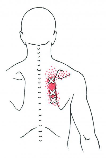 Smärta mellan skulderbladen - Rhomboideerna - Massage i Göteborg