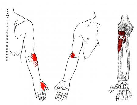 strålande smärta i armen