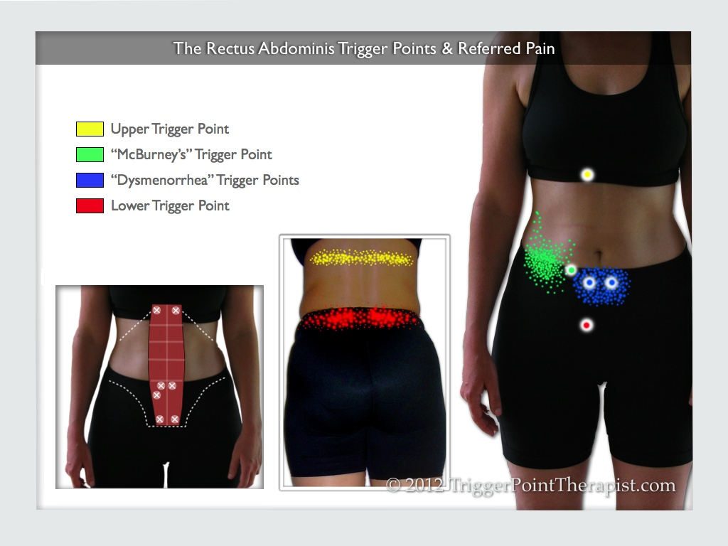 hight resolution of rectus abdominis muscle pain