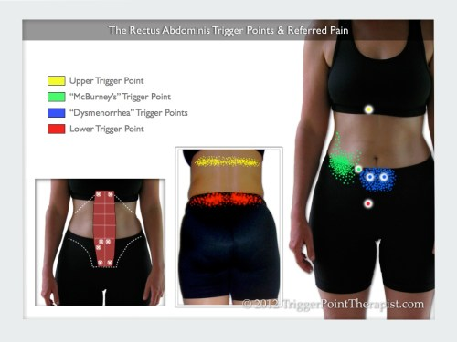 small resolution of rectus abdominis muscle pain