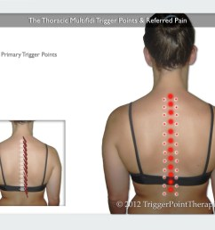 a diagram showing the thoracic multifidus trigger points and their referred pain [ 1024 x 768 Pixel ]